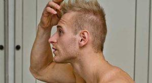 Hair Loss Intervention