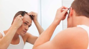 Treatments to Nip Hair Loss in the Bud