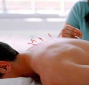 Acupuncture for a Healthier More Youthful You